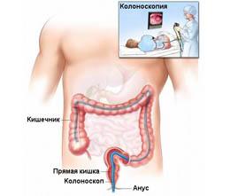 Обследование кишечника без колоноскопии