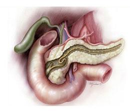 Прогноз панкреонекроза поджелудочной железы