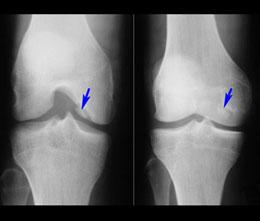 Основные причины возникновения шипов в колене