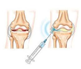 Медикаментозное лечение внутрисуставными инъекциями