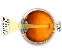 Коррекция зрения при гиперметропии