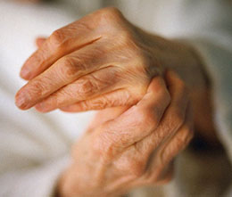 Лечение артроза сустава пальца